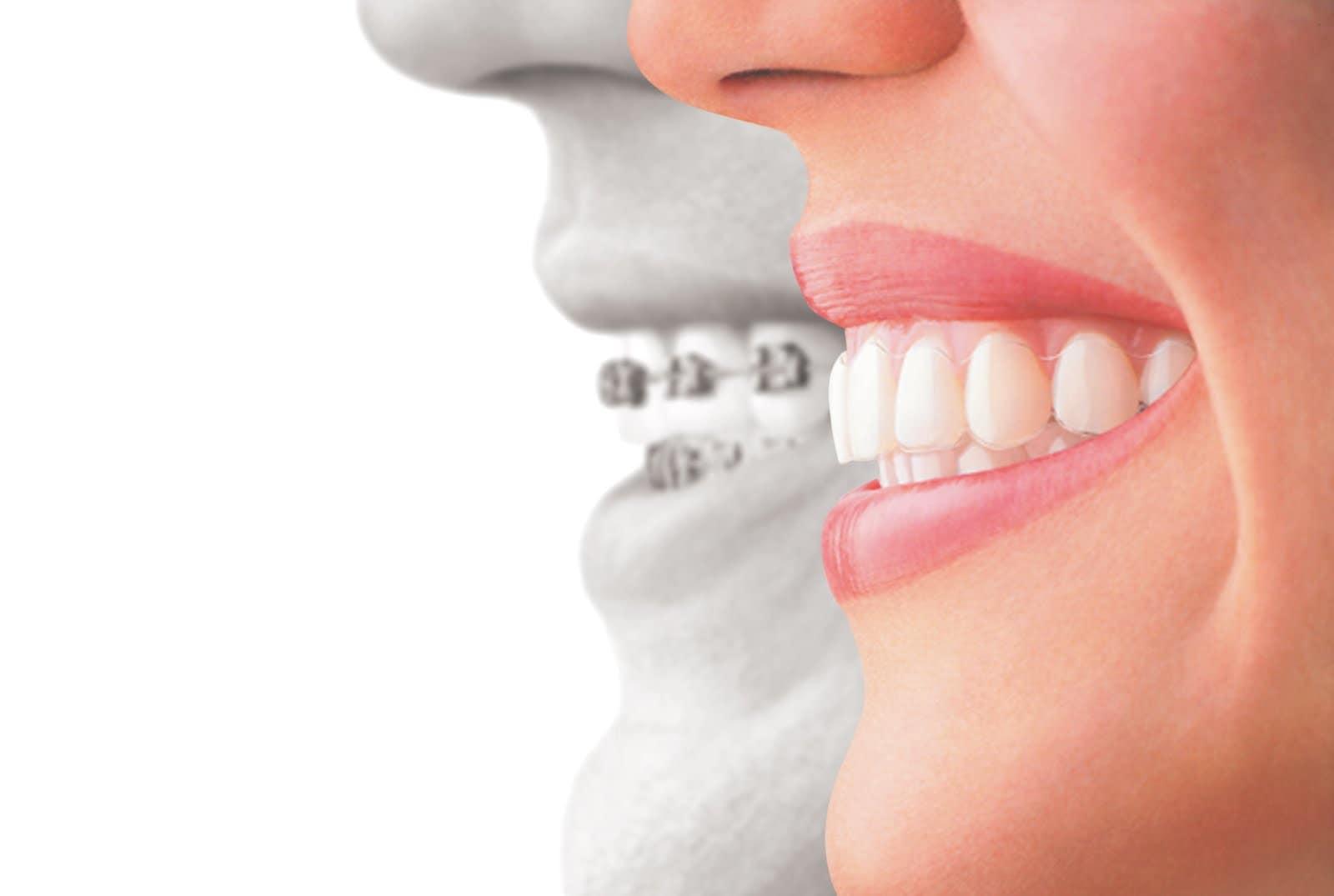 Orthodontist Fort Worth, Weatherford, Granbury and Azle
